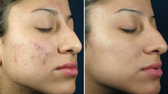 Image result for Chemical peels