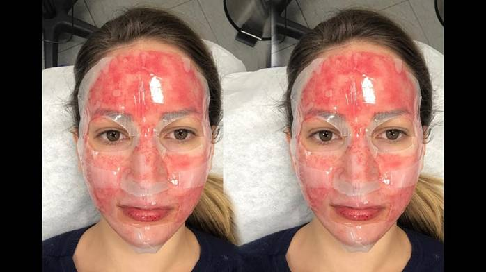 Image result for Micro needling